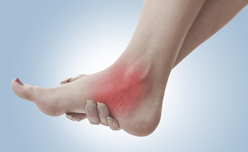 Ankle Tendinitis: Causes and Treatment