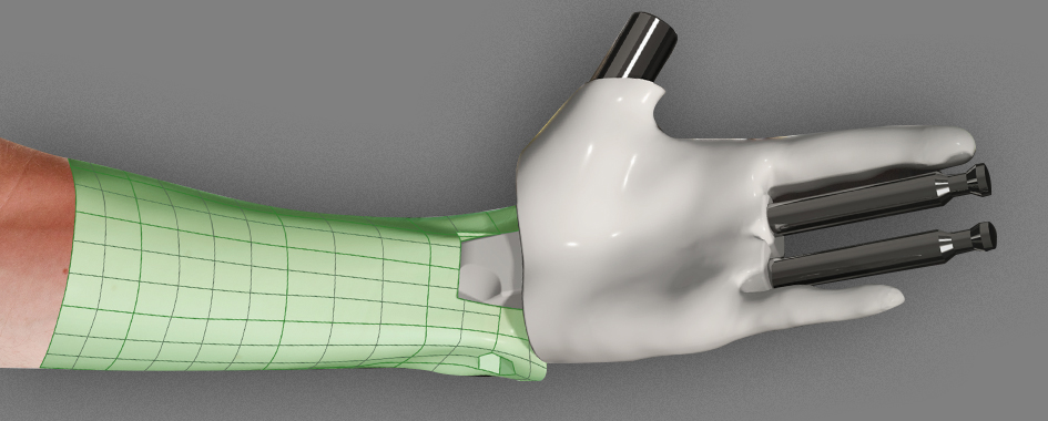 3d-scanning_wrist_protector
