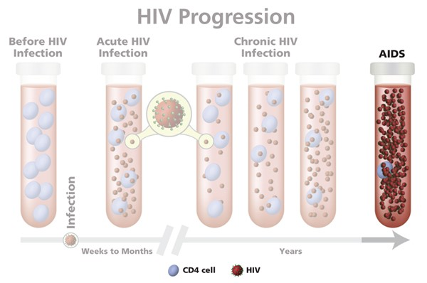 There are several stages in HIV infection. Source: NIH