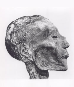 3000 year-old mummy of the Pharaoh Ramses V, shows traces of smallpox pustules on the head. (Image Credits: WHO)