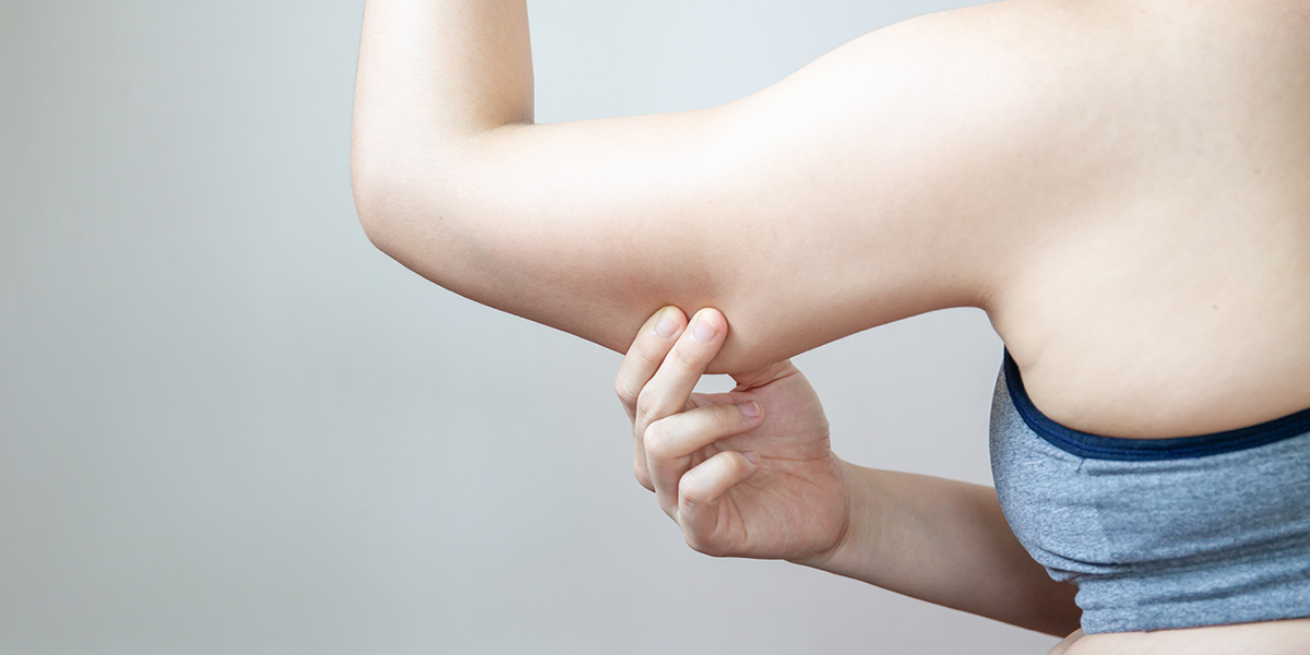 Upper Arm Liposuction