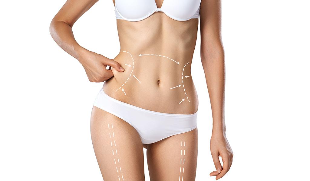 body skin tightening