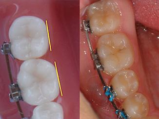 Bracket Positioning Part One - Molars