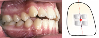 Bracket positioning Part Two - incisors