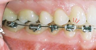 Bracket Positioning Part Two - lower premolars