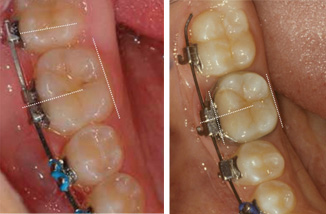 Bracket Positioning Part Two - lower molars