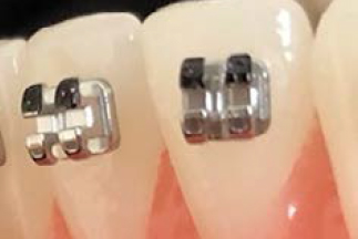 Lower incisors