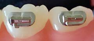Lower left first and second molar tubes