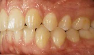 Lower molars
