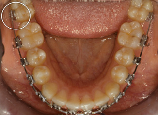 D lower second molars