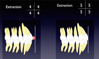 Second premolars