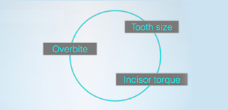 Tooth fit - 3 factors