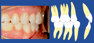 Tooth fit torque