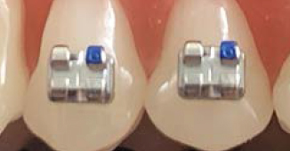 Upper first and second premolar brackets