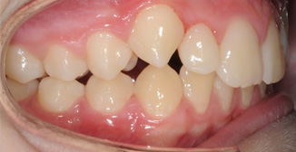 Treated case seven