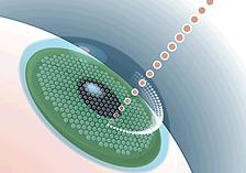 femtosecond-blade-free-intralaser-lasik-surgery