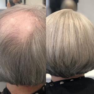 hair loss female