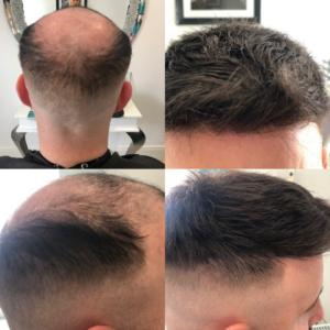 new hair 1