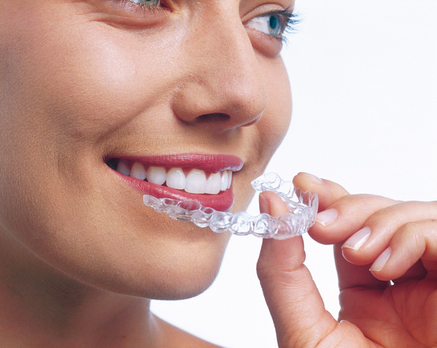 Aligners fit precisely over your teeth