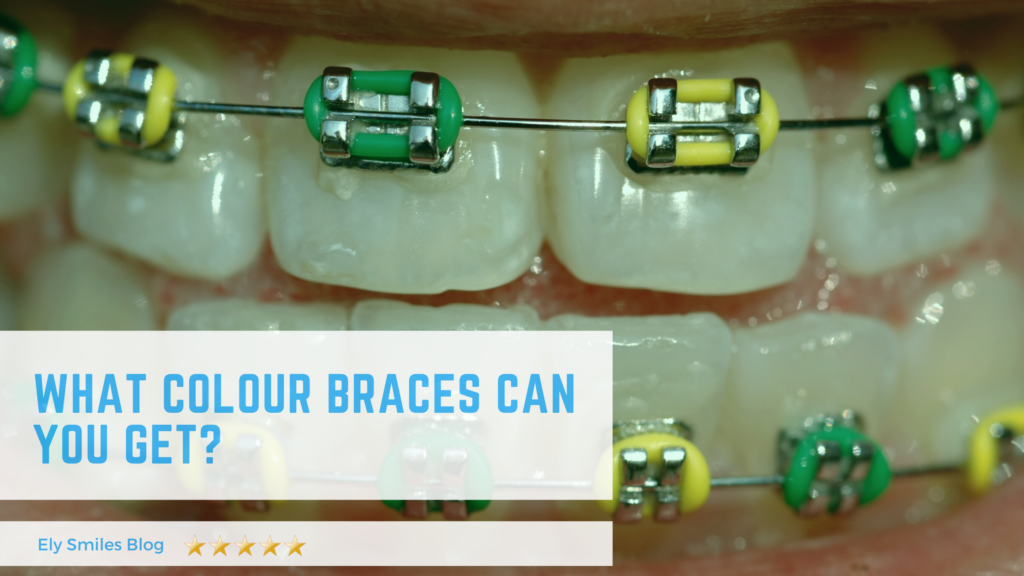What Colour Braces Can You Get