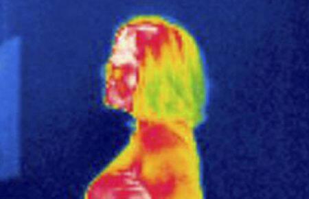 Termografia Clínica