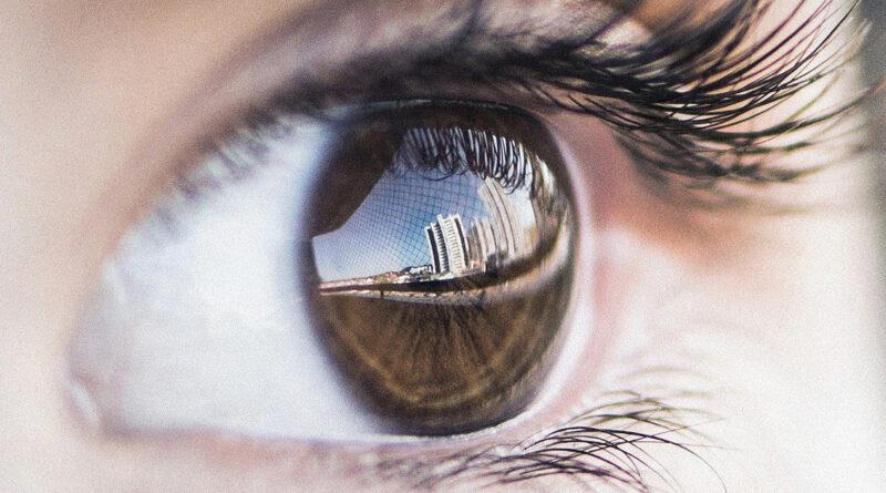 आंखों की एलर्जी से सूजन