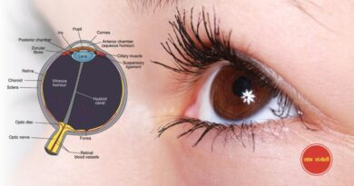 how to cure eye floaters completely