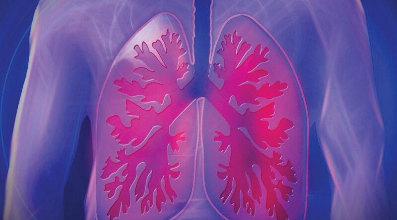 Chronic obstructive pulmonary disease causes