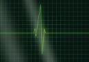 Symptoms of heart in women