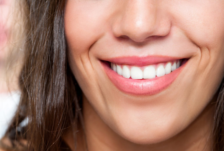 Why should I get teeth whitening in Stuart FL?