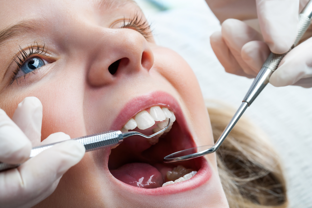 Why does a pediatric dentist in Stuart FL use fluoride?