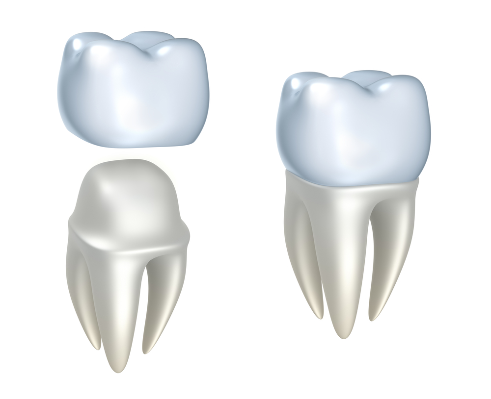 What are the benefits of cosmetic dentistry in Stuart FL?