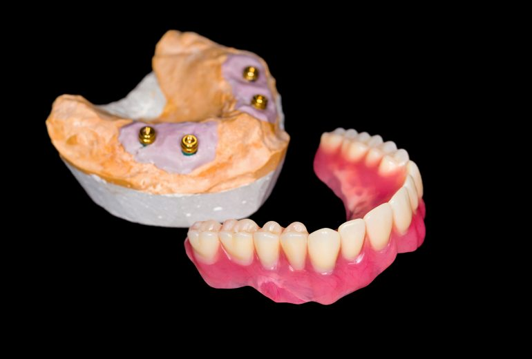Where are the best affordable dentures stuart fl?