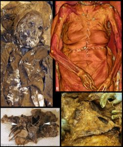 (A) View of the top half of Louise de Quengo's body, partially unclothed. (B) The thorax was cut into with two large incisions in the shape of a cross. (C) The breastplate was lifted, giving access to the organs and allowing the diaphragm cupola to be severed. (D) A vertical cut, 5 cm long, was made on the left side of the pericardial sac