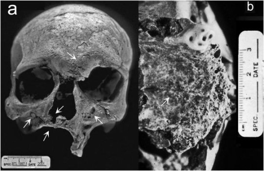 Archaeologist Unearthed Earliest Known Case of Leprosy Unearthed in India