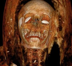 The Archaeological Mysterious Case Of The Ancient Egyptian 'Screaming Mummy'