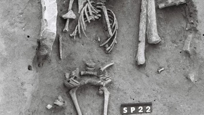 The skeleton of a 5- to 7-year-old child (shown here) who lived in medieval France shows signs of having Down syndrome, the earliest such case in the archaeological record.