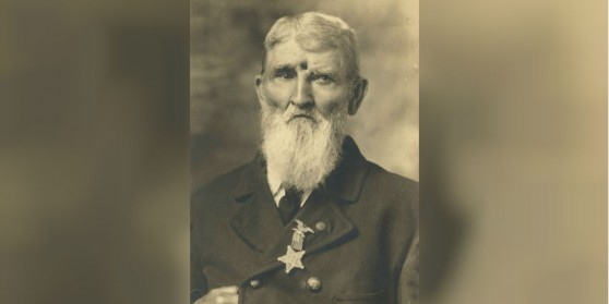 America Civil War: Soldier Shot in the Head Survived for Decades