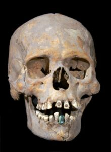 The 1,600-year-old skeleton of an upper-class woman found near Mexico's ancient Teotihuacan wore a prosthetic lower tooth made of a green stone known as serpentine