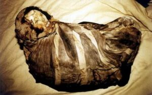 Mummy Juanita before unwrapping her body.