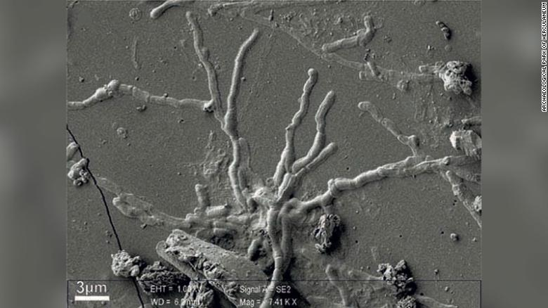 Scientists find intact brain cells in skull of man killed in Vesuvius eruption nearly 2,000 years ago