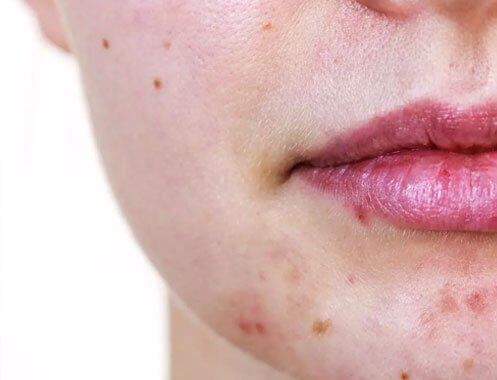 ACNE Cosmetic treatment Manchester