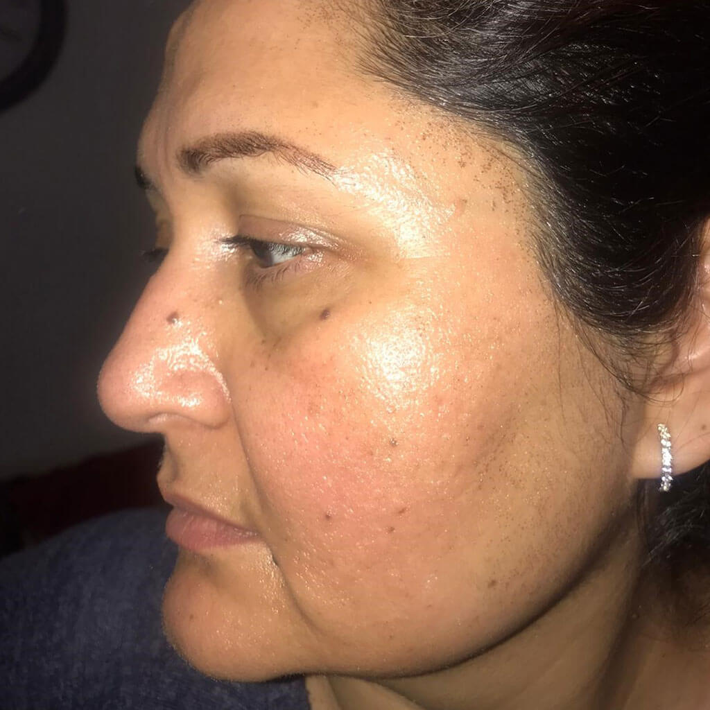 Pre & post CO2 laser treatment Results
