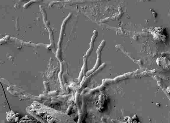 nerve cell turned to glass