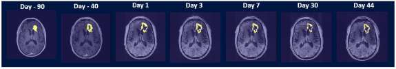 weighted axial post-contrast scans showing the contrast-enhanced tumor (CET) highlighted with an overlayed automated computer program-generated light-yellow mask at different time points.