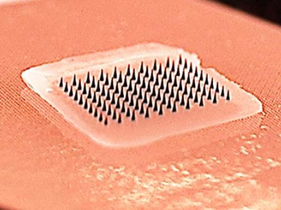 Microneedle Vaccine Patch
