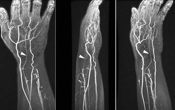 New artery growing in human arm