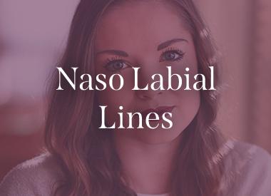 Naso Labial Lines