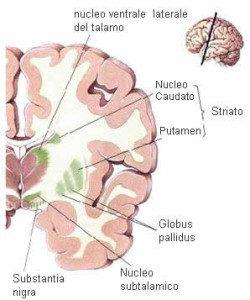 Cause-paralisi-cerebrale-discinetica