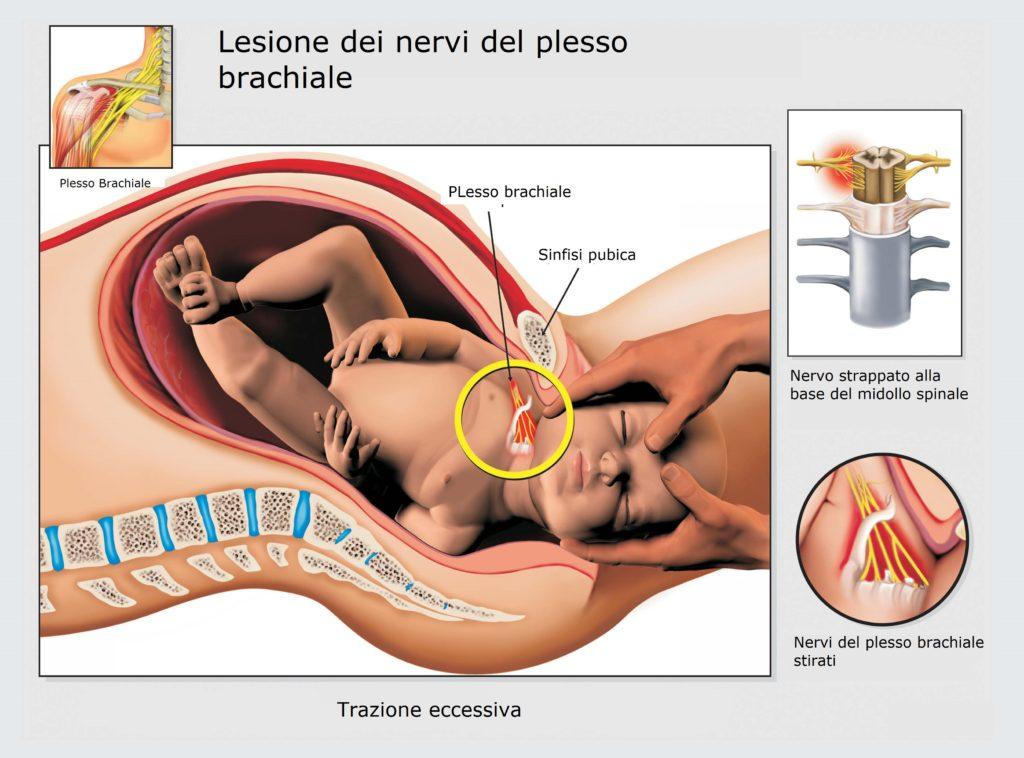 Lesione-nervi-plesso-brachiale